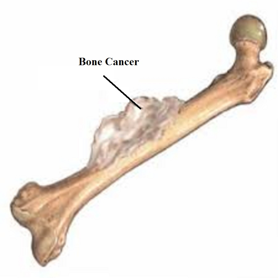 bone cancer Information and resources about bone cancer from cancercare.