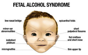 fatal alcohol syndrome