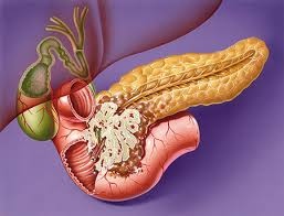 causes of pancreatic cancer