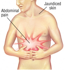 symptoms of gallbladdr cancer