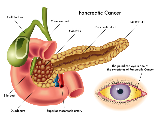 the causes diagnosis and treatment of pancreatic cancer Learn about pancreatic cancer signs, symptoms, causes, statistics, treatment and side effects (chemotherapy, radiation, surgery, biological therapy) of malignant tumors of the pancreas.