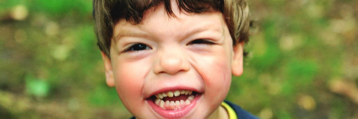 Williams Syndrome: Causes, Symptoms, Diagnosis and ...