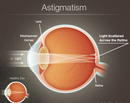 What is Astigmatism ? Cure, Symptoms and Diagnostic