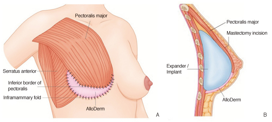Augmentation and Breast Reconstruction