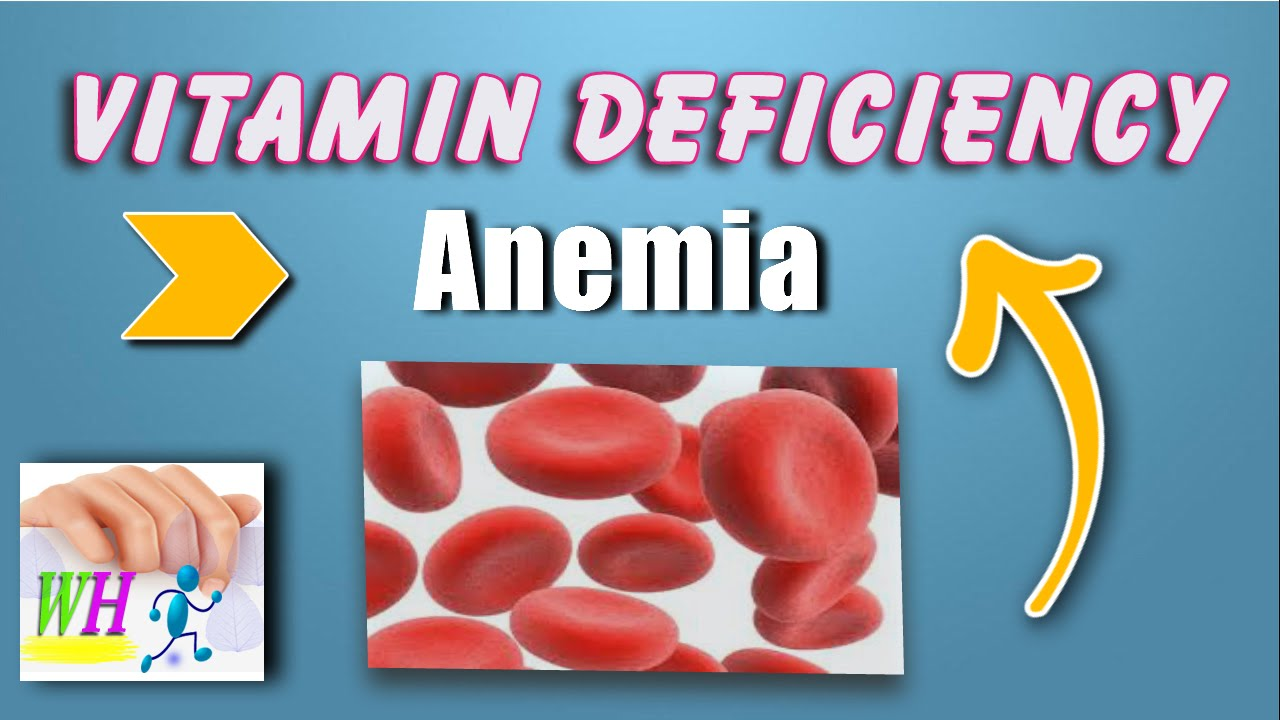 Vitamin B12 Deficiency Anemia