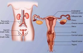 Cancer of the endometrium
