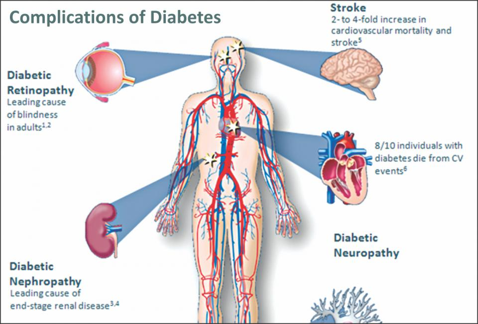 diabetes the disease Diabetes: are high blood glucose levels an effect rather than the cause of the disease date: march 15, 2018 source: german cancer research center.