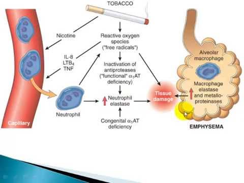 Chronic Bronchitis And Emphysema Copd Causes Symptoms