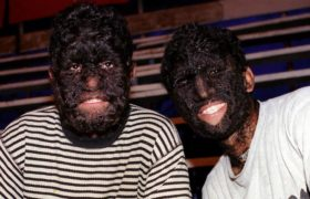 hypertrichosis