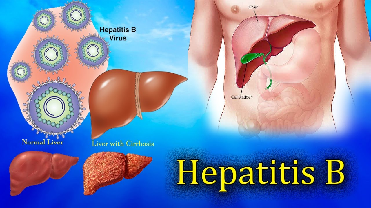 a description of hepatitis caused by a virus that is targeted at the liver Hepatitis is the medical term for inflammation of the liver the hepatitis c virus is one of the many causes of inflammation of the liver liver inflammation can also be caused by other types of hepatitis viruses, as well as by alcohol, medications, and some other less common problems.