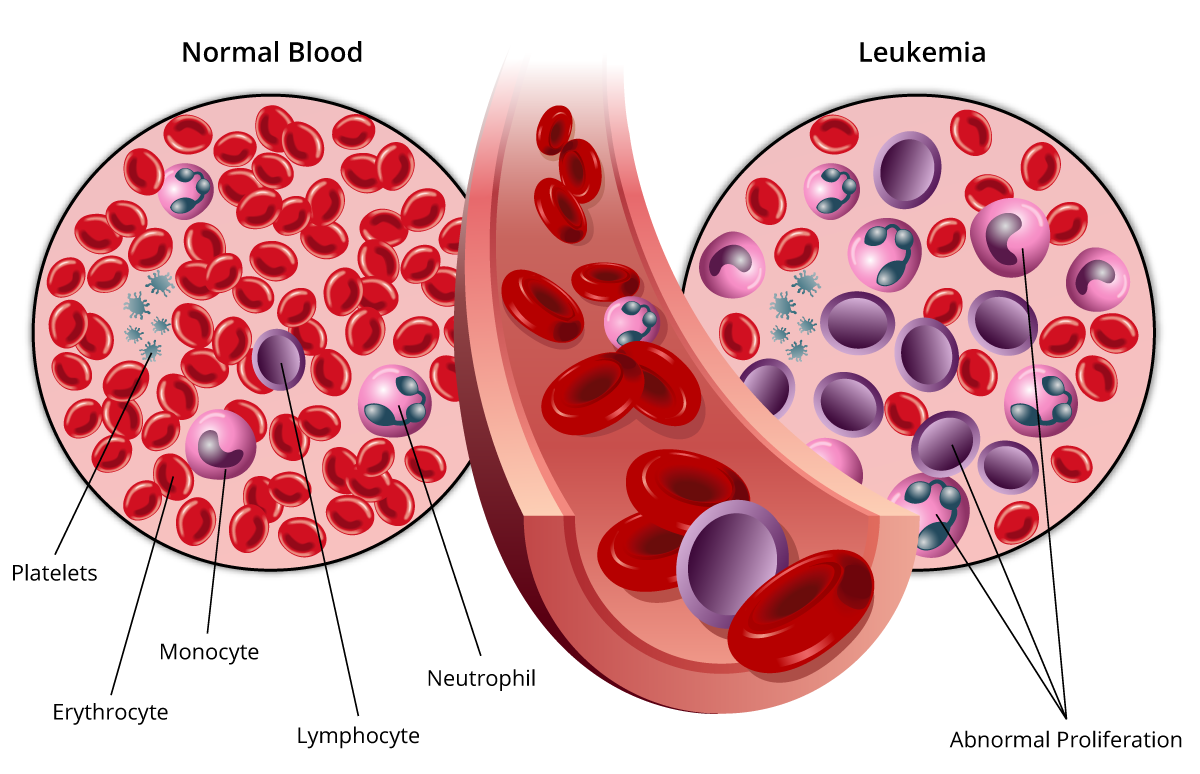the symptoms and treatment of chronic myeloid leukemia a blood cell disease Signs and symptoms of chronic myeloid leukemia  very high white blood cell counts, the leukemia cells don't  leukemia - chronic myeloid - cml: symptoms and.