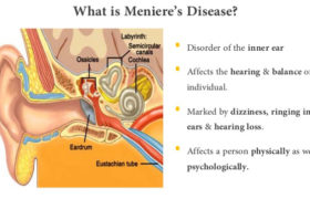 What-is-Meniere's-disease