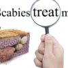 Scabies: symptoms and treatment of scabies