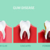 Gingivitis causes symptoms and treatment