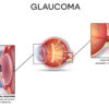 Glaucoma causes symptoms and treatment