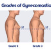 Gynecomastia: what is it? causes symptoms and treatment
