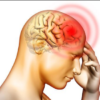 Headache (headache) Causes, Symptoms and Treatment
