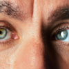Strabismus Causes, Symptoms and Treatment