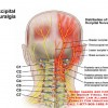 Occipital Neuralgia, Causes, Symptoms, Cure and Treatment