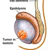Testicular Cancer, Symptoms, Types, Causes and Treatment