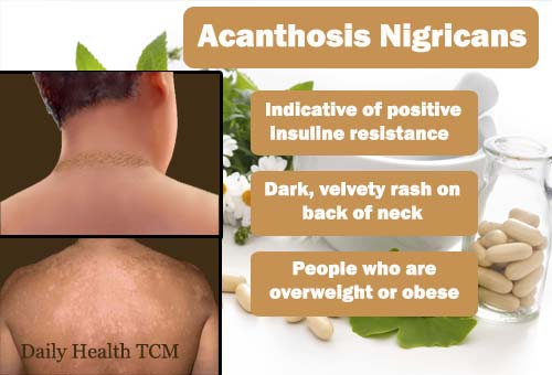 Acanthosis Nigricans Treatment Diet