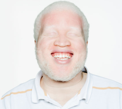What is Albinism and its Symptoms and Treatment
