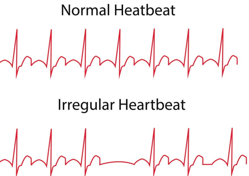 Arrhythmia A Heart Rhythm Disorder