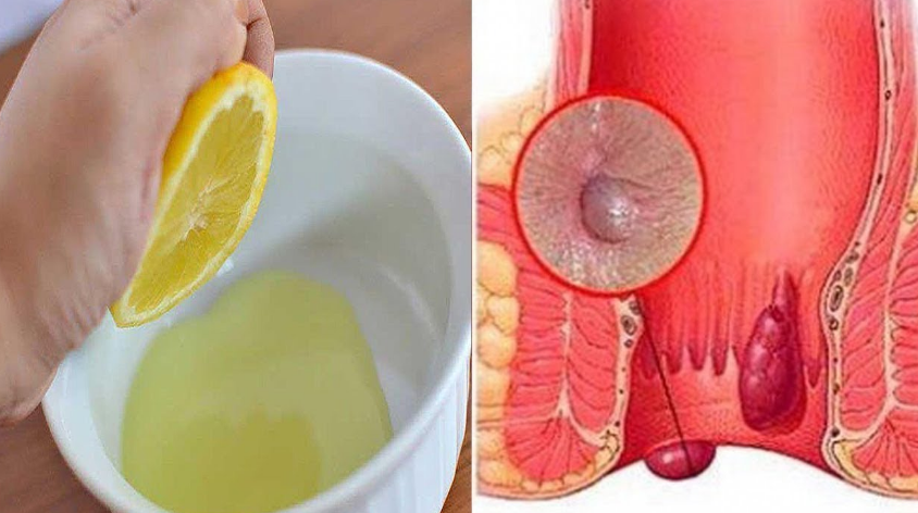 Hemorrhoids In a Natural Way